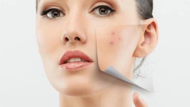 Как использовать витамин Е для уменьшения шрамов ?